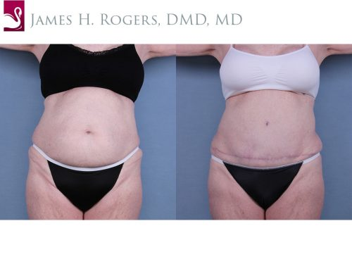 Abdominoplasty (Tummy Tuck) Case #10668 (Image 1)