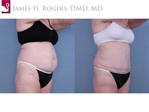 Abdominoplasty (Tummy Tuck) Case #10668 (Image 2)