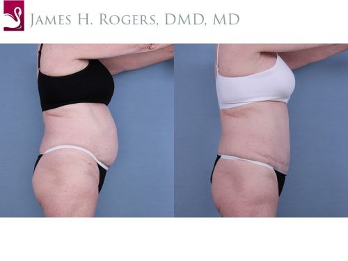 Abdominoplasty (Tummy Tuck) Case #10668 (Image 3)