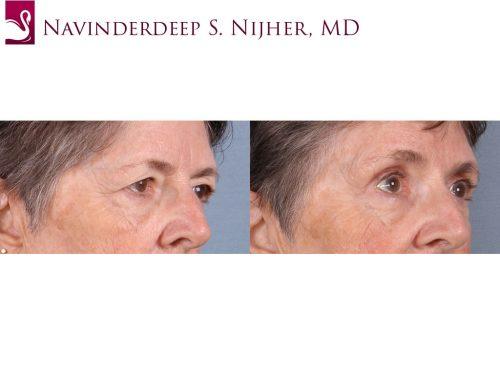 Eyelid Surgery Case #65395 (Image 2)