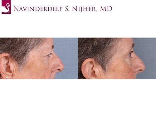 Eyelid Surgery Case #65395 (Image 3)