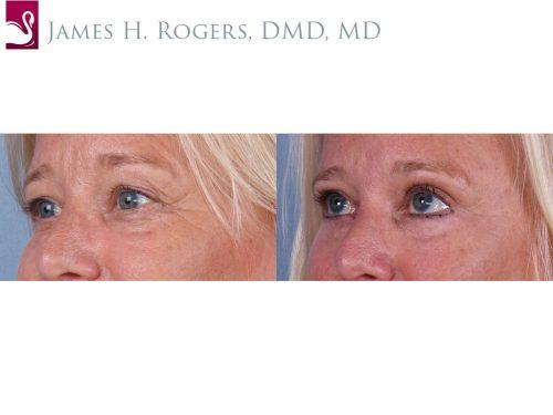 Eyelid Surgery Case #66077 (Image 2)