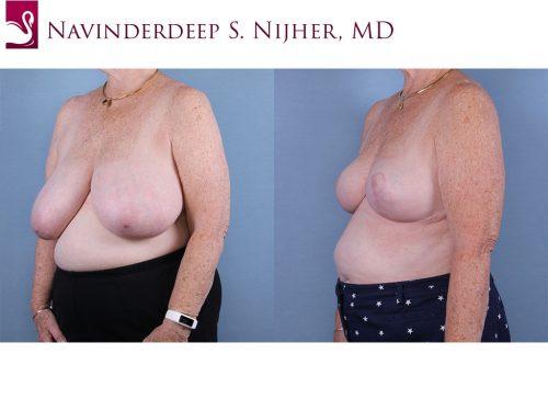 Female Breast Reduction Case #66136 (Image 2)
