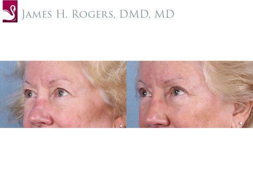 Eyelid Surgery Case #66240 (Image 2)