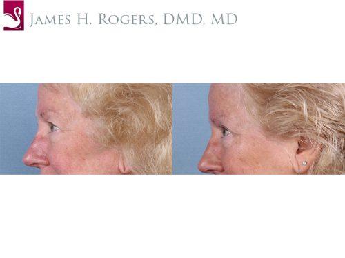 Eyelid Surgery Case #66240 (Image 3)