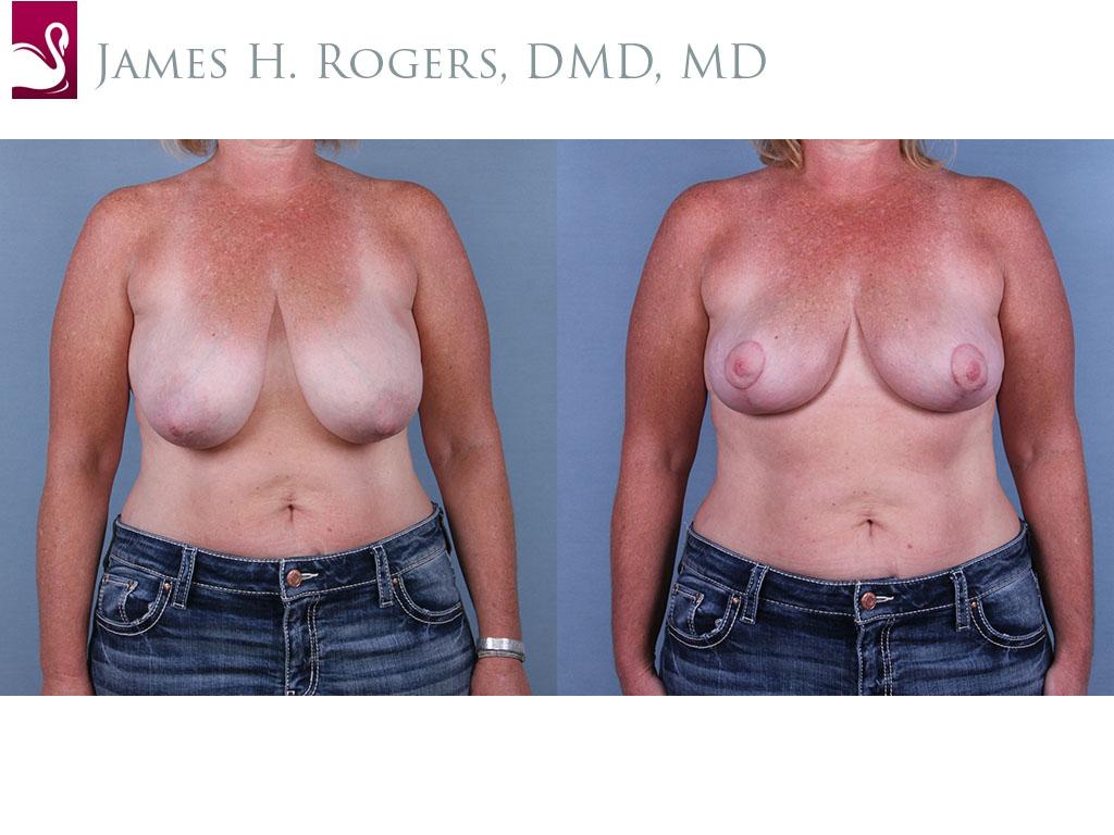 Breast Lift (Mastopexy) Case #67101 (Image 1)