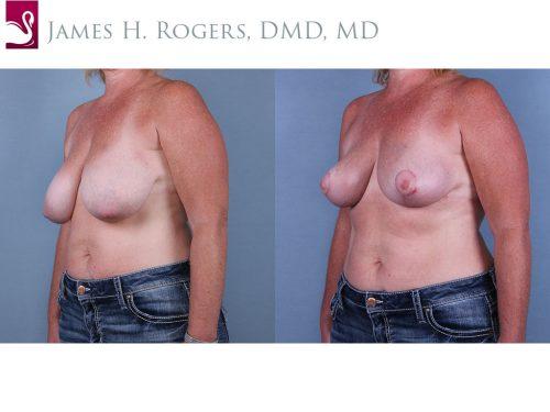 Breast Lift (Mastopexy) Case #67101 (Image 2)