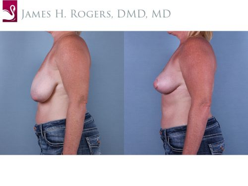 Breast Lift (Mastopexy) Case #67101 (Image 3)