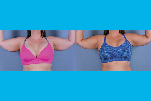 Before and after image of a real CoolSculpting treatment performed by Ocala Plastic Surgery.