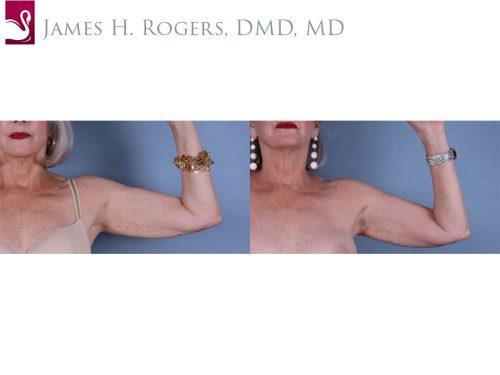 Arm Lift Case #42251 (Image 2)