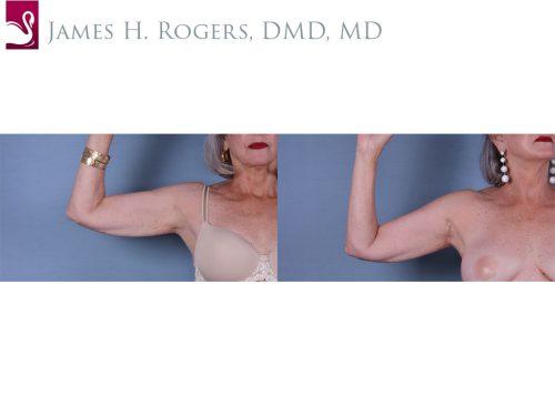 Arm Lift Case #42251 (Image 3)