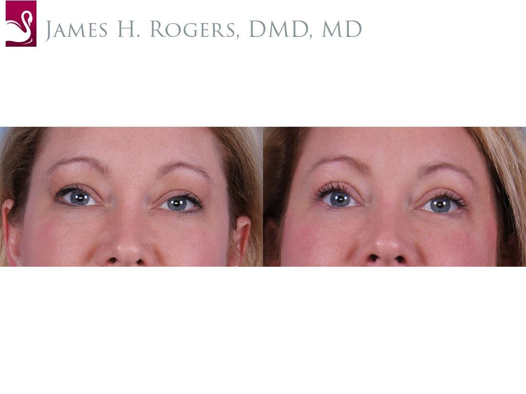 Eyelid Surgery Case #59274 (Image 1)