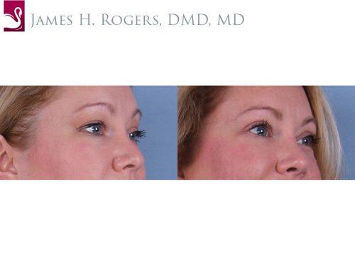 Eyelid Surgery Case #59274 (Image 2)