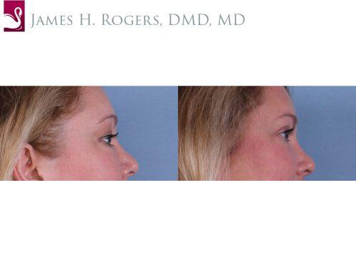 Eyelid Surgery Case #59274 (Image 3)