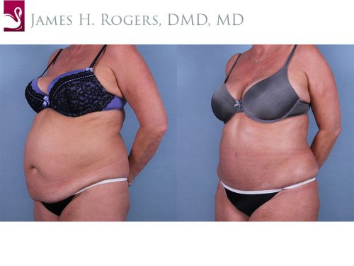 Abdominoplasty (Tummy Tuck) Case #66405 (Image 2)