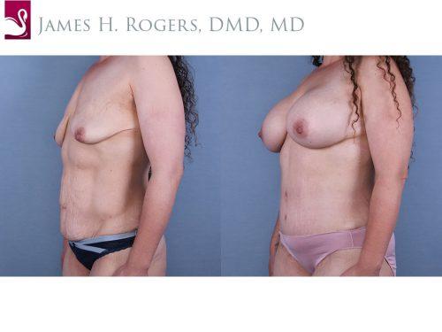 Abdominoplasty (Tummy Tuck) Case #67179 (Image 2)