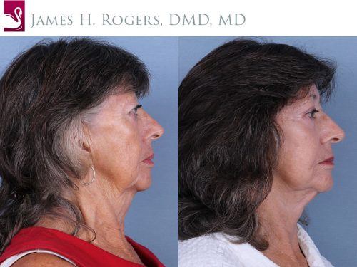 Face Lift Case #67603 (Image 3)