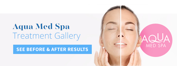 View aqua med spa before and after galleries