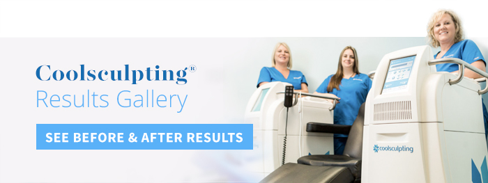 View Before and After Results Galleries for Coolsculpting
