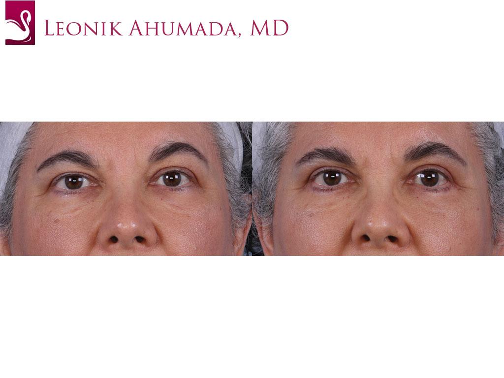 Eyelid Surgery Case #18938 (Image 1)