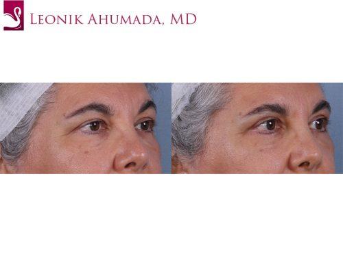 Eyelid Surgery Case #18938 (Image 2)