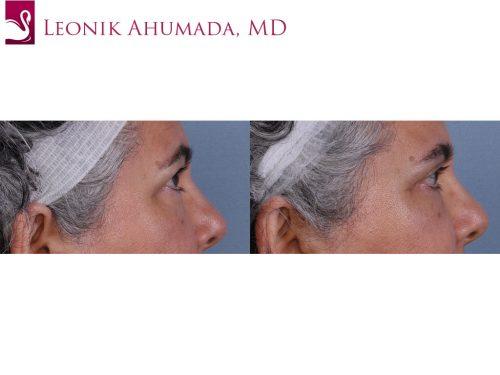 Eyelid Surgery Case #18938 (Image 3)