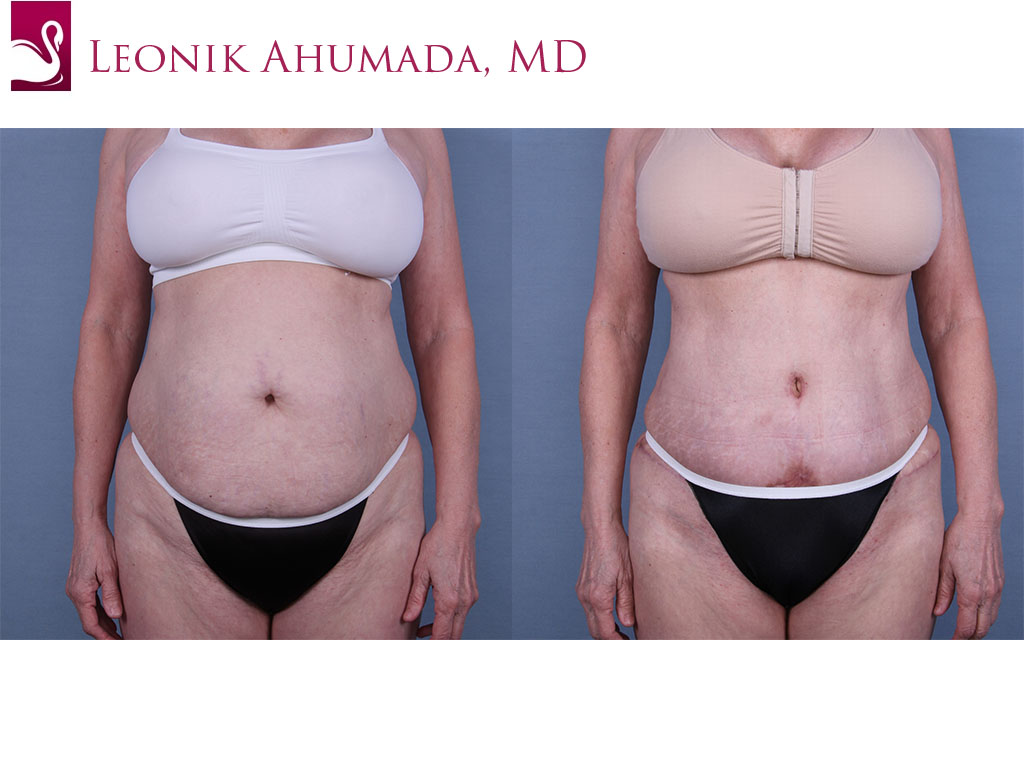 Abdominoplasty (Tummy Tuck) Case #59629 (Image 1)