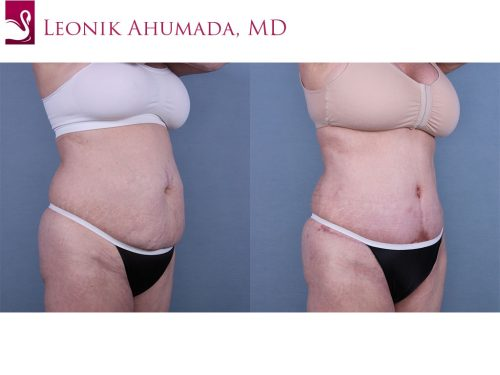 Abdominoplasty (Tummy Tuck) Case #59629 (Image 2)