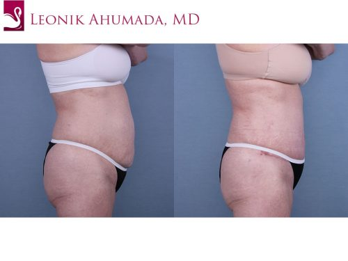 Abdominoplasty (Tummy Tuck) Case #59629 (Image 3)