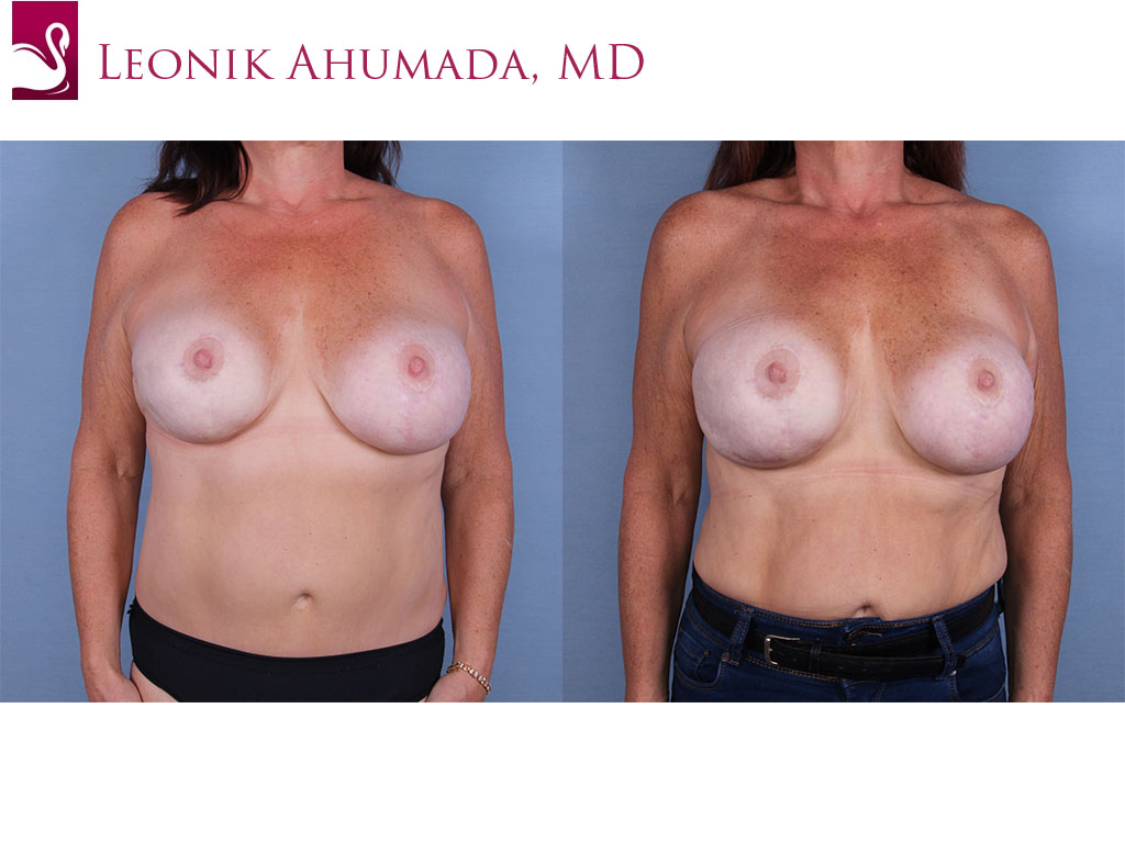 Breast Revisions Case #64758 (Image 1)