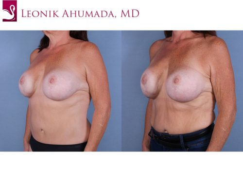 Breast Revisions Case #64758 (Image 2)