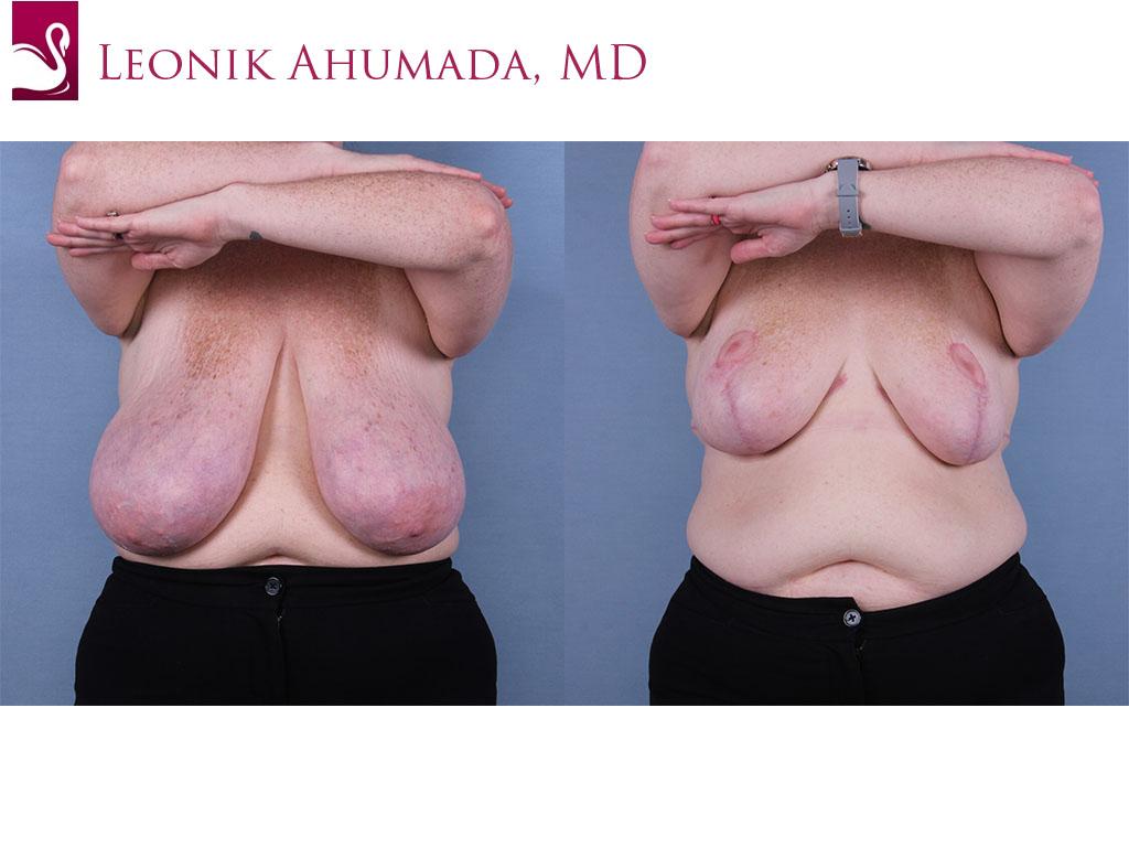 Female Breast Reduction Case #67232 (Image 1)