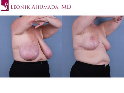 Female Breast Reduction Case #67232 (Image 2)