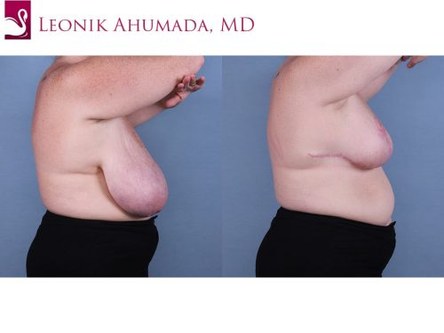 Female Breast Reduction Case #67232 (Image 3)