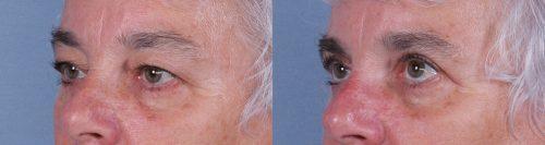 Eyelid Surgery Case #67847 (Image 2)