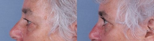 Eyelid Surgery Case #67847 (Image 3)