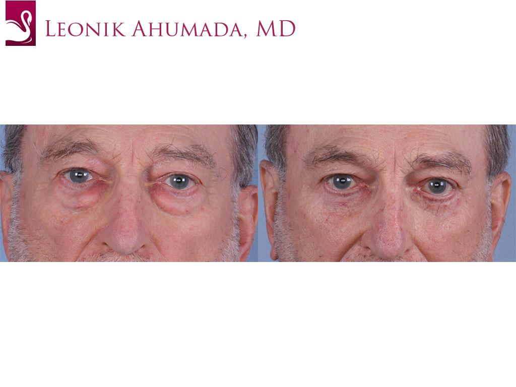 Eyelid Surgery Case #65500 (Image 1)
