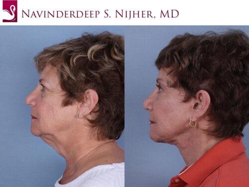 Face Lift Case #60848 (Image 3)