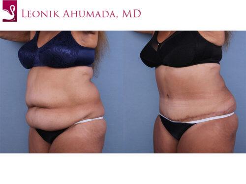 Abdominoplasty (Tummy Tuck) Case #66838 (Image 2)