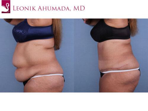 Abdominoplasty (Tummy Tuck) Case #66838 (Image 3)