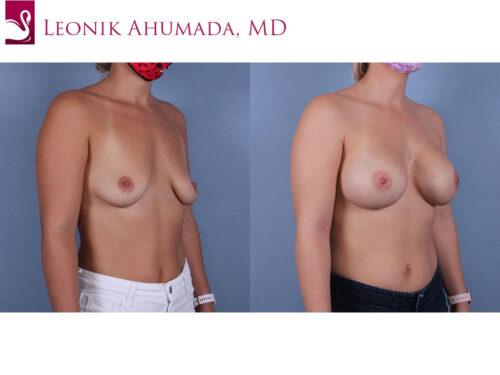 Breast Augmentation Case #70011 (Image 2)