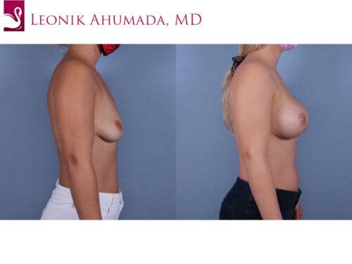 Breast Augmentation Case #70011 (Image 3)