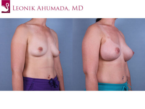 Breast Augmentation Case #70425 (Image 2)