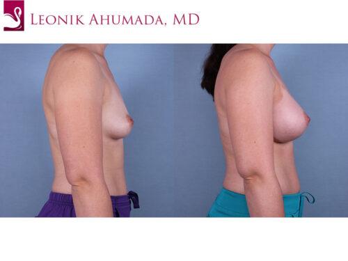 Breast Augmentation Case #70425 (Image 3)