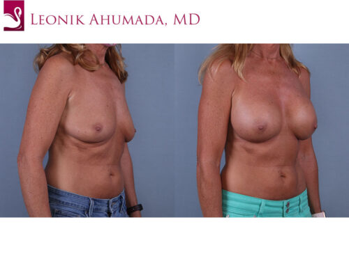 Breast Augmentation Case #70564 (Image 2)