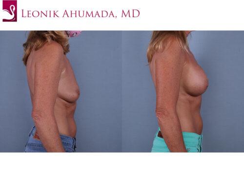 Breast Augmentation Case #70564 (Image 3)